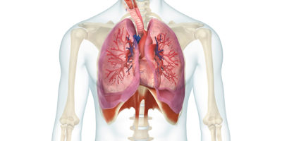 lung volume reduction coil